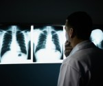 South African miners to tackle lung disease claims